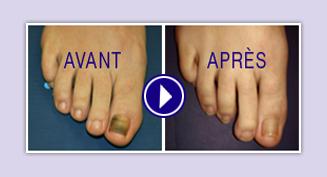 Les rappels sur la varice variqueuse sur les pieds
